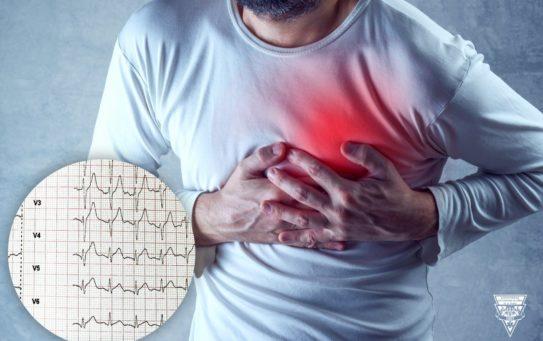 Kazuistika: akutní infarkt myokardu, 42 letý muž
