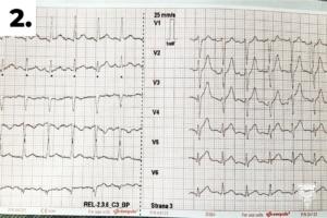 2. první 12svodové EKG
