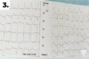 3. EKG 12 svodů před fibrilací komor