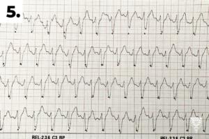 5. EKG při předání